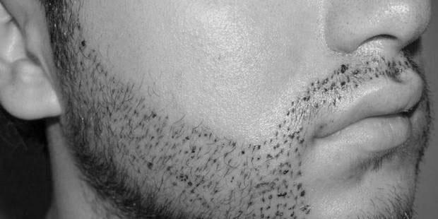 greffe de barbe d couvre la nouvelle tendance masculine. Black Bedroom Furniture Sets. Home Design Ideas